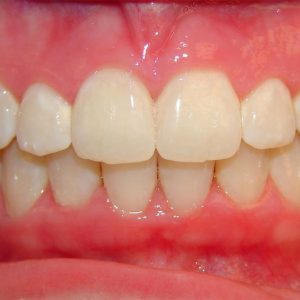 Invisalign dentist dr fu at chesterhill dentistry offers invisalign if you arent wearing your aligners as indicated if you havent devoted yourself to a lifestyle that accepts and respects invisalign the results will not solutioingenieria Choice Image