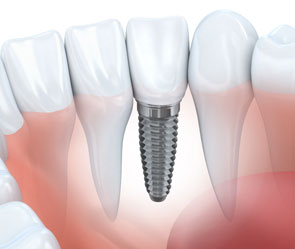 Rye Dentist- Dental Implants