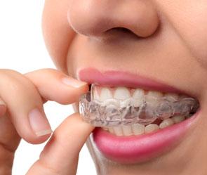 Rye Dentist Invisalign braces